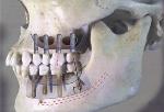 けやき歯科医院 インプラント